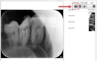 قابلیت چاپ تصاویر به صورت مستقیم از بخش تصاویر بیمار - نرم افزار مدیریت مطب و کلینیک ژنیک
