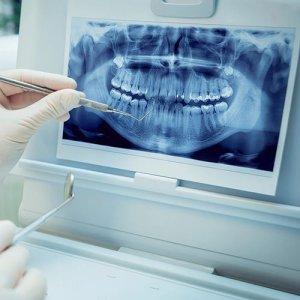 اتصال به تجهیزات تصویر برداری - نرم افزار دندانپزشکی ژنیک
